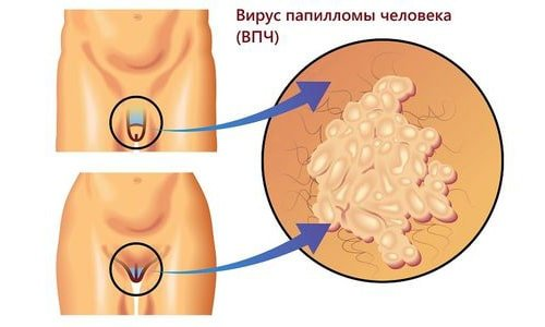 удаление геморроя на аппарате сургитрон