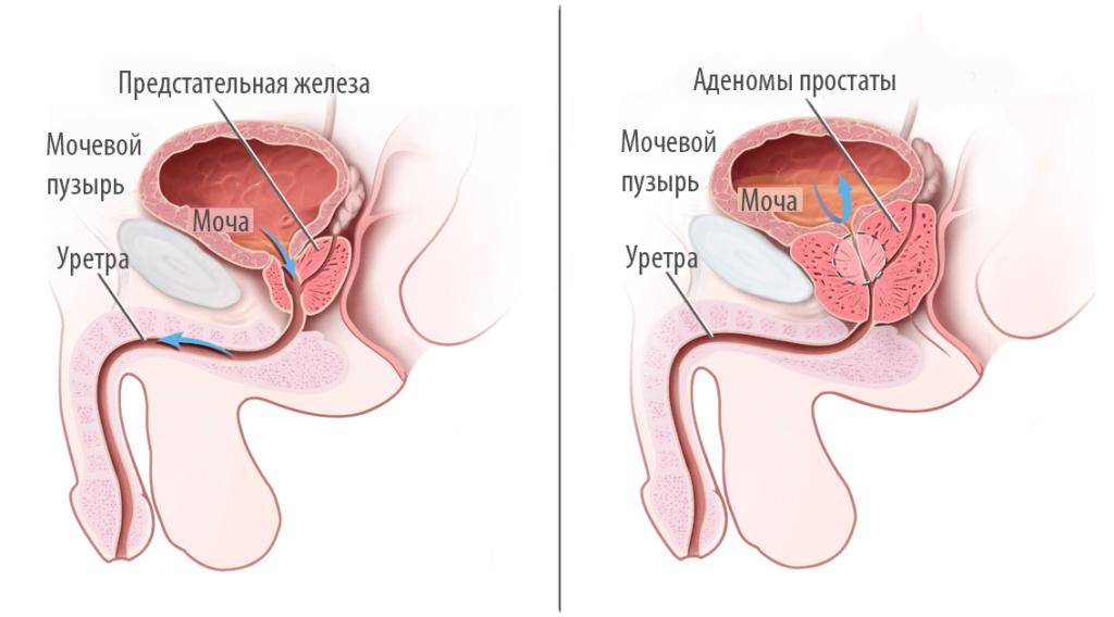 УЗИ простаты, узи предстательной железы